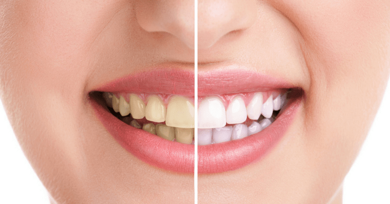 What are the causes of your stained teeth?